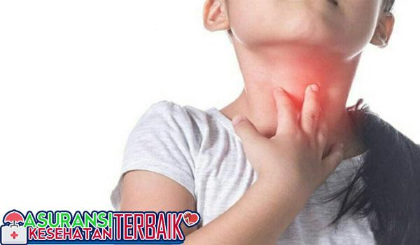 Tenggorokan Kering Bisa Jadi Tanda Gangguan Kesehatan, Begini Baiknya